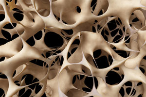 Osteoporosis is a Silent Disease